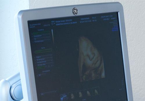 Schwangerenvorsorge: Ultraschallbild eines Babys