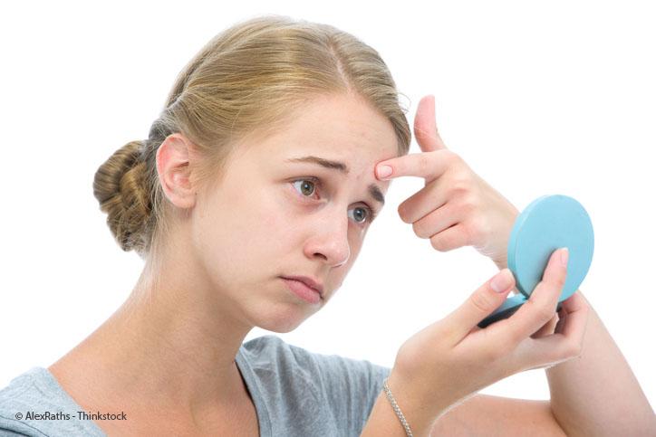 Akne in der Pubertät